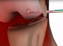 Injecteerbare kraakbeenpleister